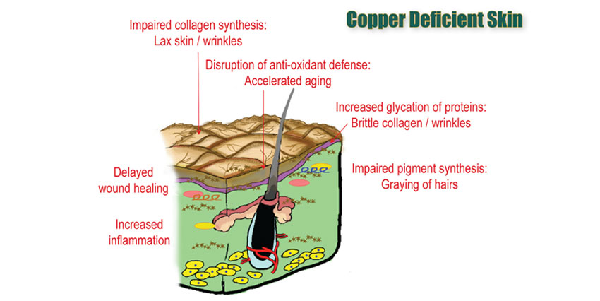 Copper deficiency