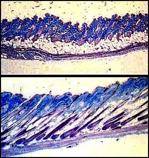 Mouse Follicle